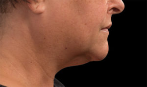 Double Chin After Coolsculpting