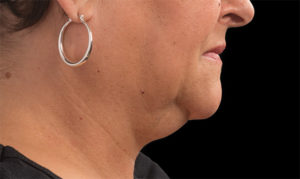 Double Chin Before Coolsculpting