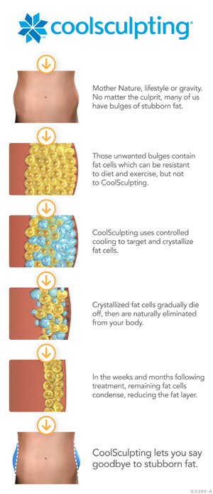 CoolSculpting lets you say goodbye to stubborn fat
